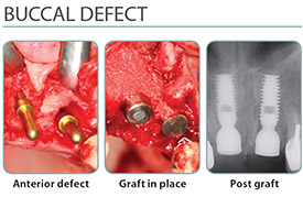 Buccal Defect